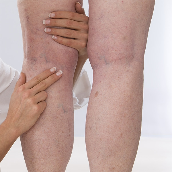 DVT Diagnosis of Woman with Leg Veins | BoxBar Vascular | Vascular Care in  Seattle