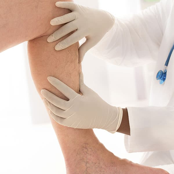 Doctor examining a womens leg for Painless In-Office Venous Surgery in Seattle