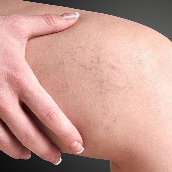 Spider Veins on a Woman's knee | Spider Vein and Vascular Treatment in Seattle at BoxBar Vascular.
