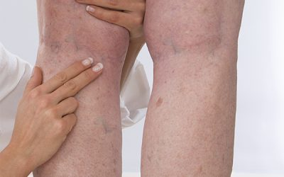 DVT Diagnosis in Seattle