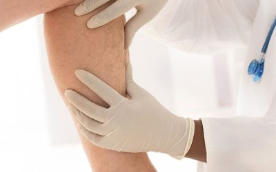 Painless In-Office Venous Surgery in Seattle