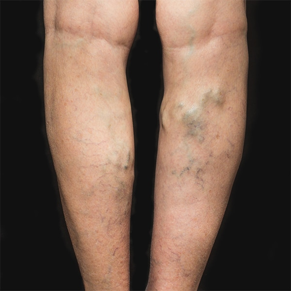 Legs with Varicose Veins in need of Varicose Vein Surgery. | BoxBar Vascular | Vein Clinic in Seattle