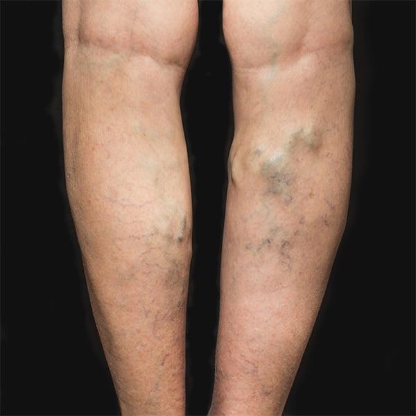 Legs with Varicose Veins in need of Varicose Vein Surgery. | BoxBar Vascular | Vein Clinic in Seattle